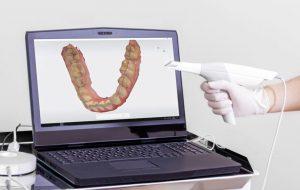 اسکنر سه بعدی دیجیتال دندانپزشکی
