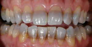 رنگ گرفتن دندان بر اثر تتراسایکلین